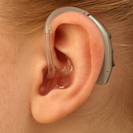 bte-retroauricular-ear